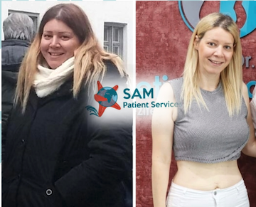 sam patient services | gastrik bypass