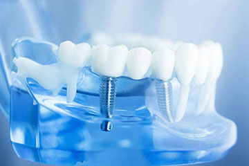 sam patient services | implant uygulamaları